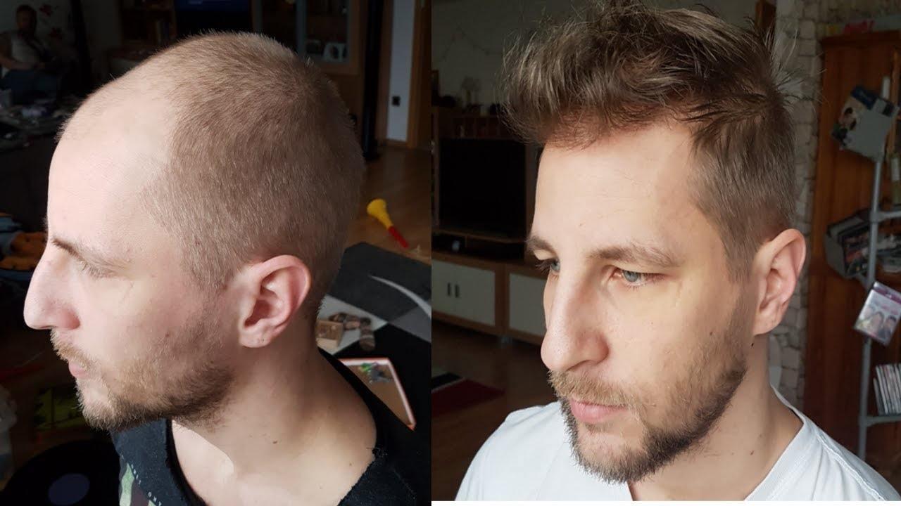 Erfahrungen haartransplantation Haartransplantation Forum