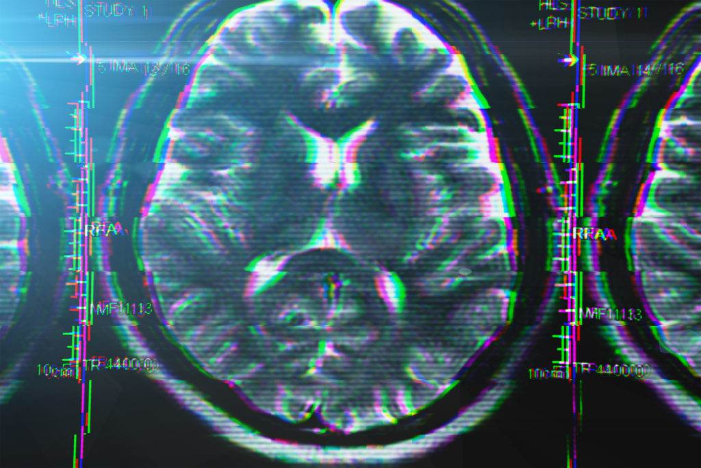 X-ray or MRI brain scan with glitch effect. Abstract concept of Alzheimer disease and other health problems with head, brain, memory and mental problems, toned