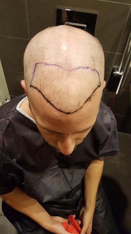 meezy-beezy-haartransplantation 2