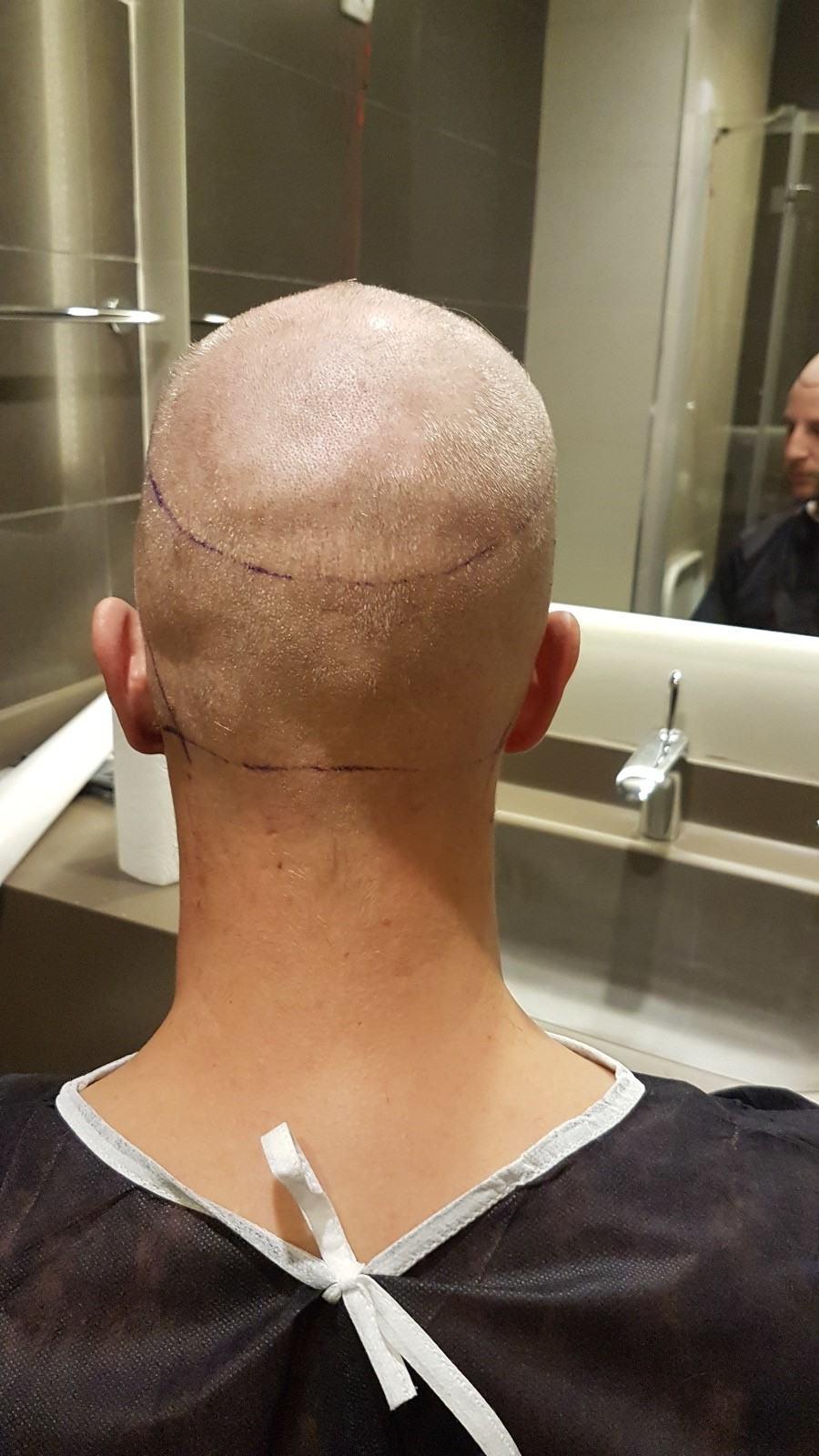 meezy-beezy-haartransplantation 3